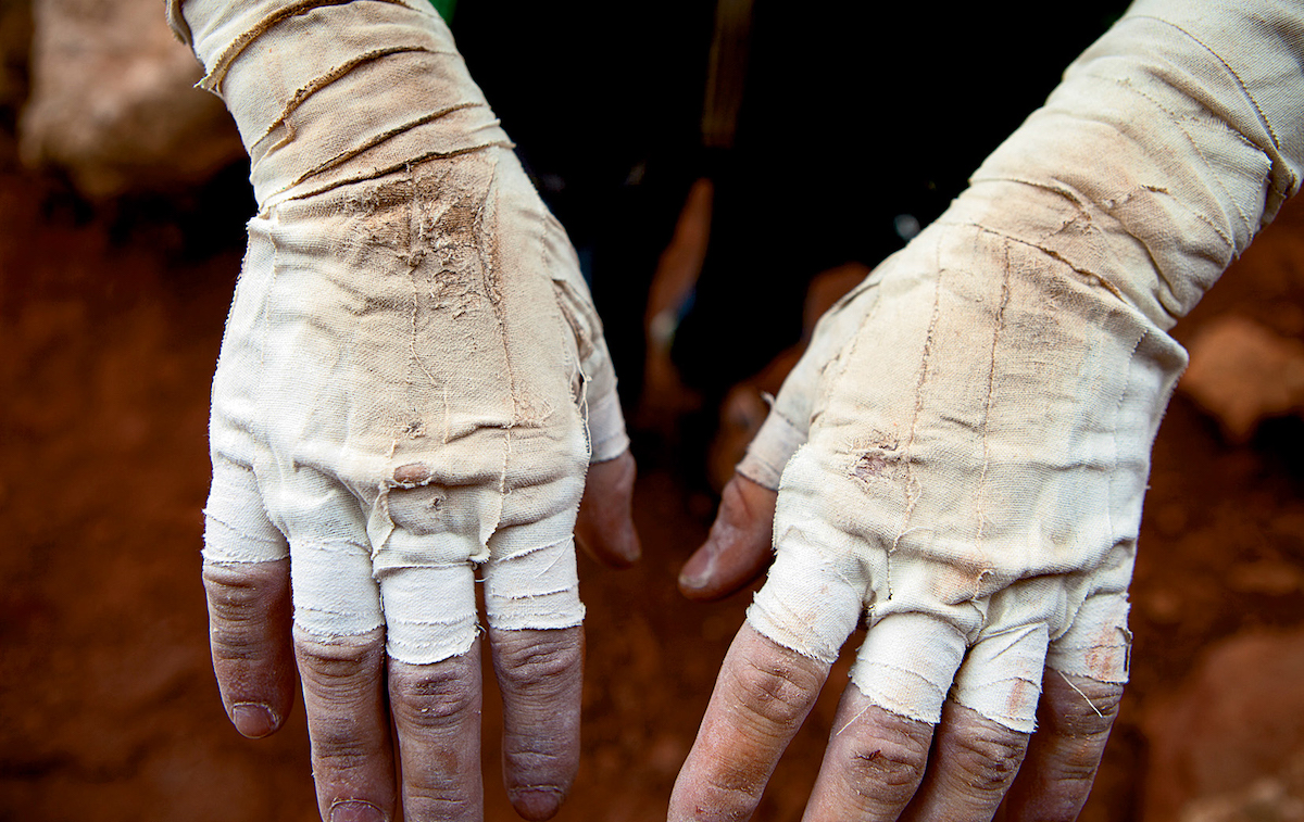 A climber displays their worn tape gloves. [Photo] Andrew Burr